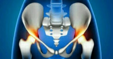 Tips Mengatasi Sakit Tulang Ekor